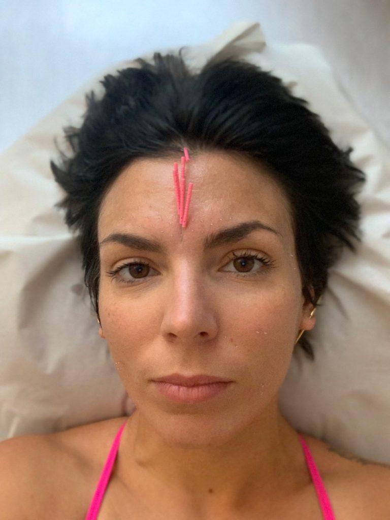 akupunktio, kosmeettinen akupunktio, kuppaus, kuivakuppaus, ihonhoito, ryppy, rypyt, ikääntymisen merkit, kiinalainen lääketiede, kiinalainen hoito, anti age, sofianova, taina alakulppi,